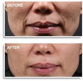INTRAcel Skin Rejuvenation