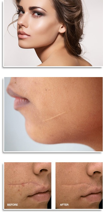 Scar Reduction And Removal