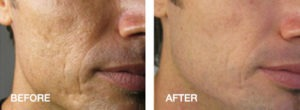 Acne treatment results