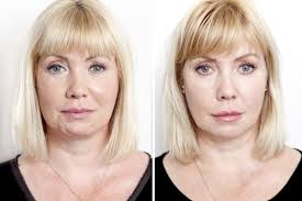 Intracel Skin Rejuvenation