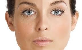 laser Hyperpigmentation