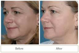 Photo Rejuvenation Treatment
